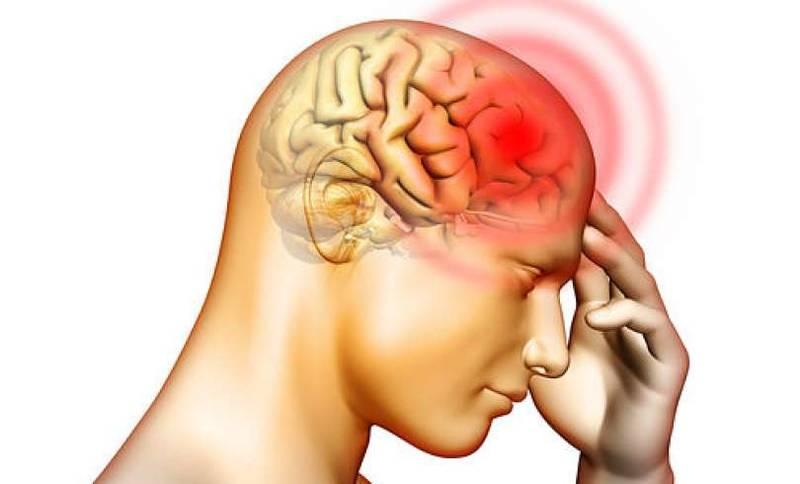 سردرد های میگرنی 4