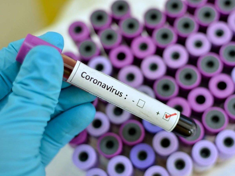 آنچه باید درباره ویروس کرونا بدانید