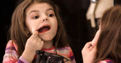 نمک ریختن روی آفت دهانی مشکل را حادتر میکند